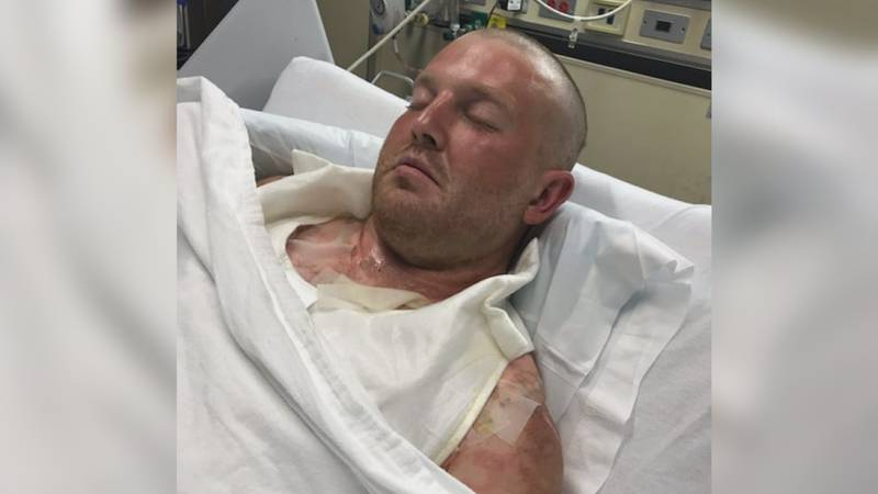 Jonathan Lindsey suffered burns to his entire body after his truck exploded on Wednesday.