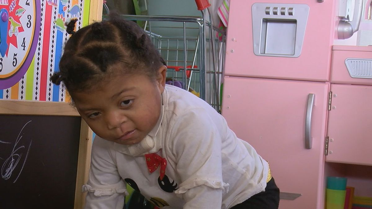 Kaytlen is two years old and she has Charge Syndrome. She is also looking for a forever family.
